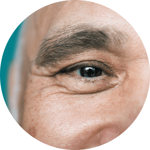 Close up view of a person's right smiling eye looking straight ahead.