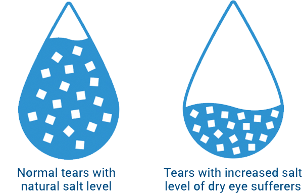Graphic showing normal tears with a natural salt level compared to tears with the increased salt level of dry eye sufferers.